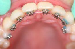 L'ortodonzia linguale (invisibile)