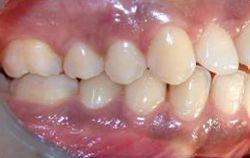 Vantaggi nell'utilizzo delle fibre di vetro in ortodonzia