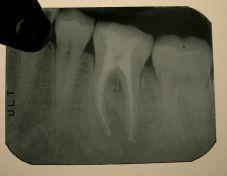 Parodontite apicale cronica da necrosi