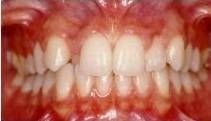 Affollamento dentario anteriore
