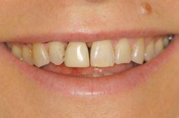 Sostituzione dente singolo e carico immediato