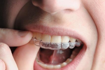 L'apparecchio ortodontico mobile
