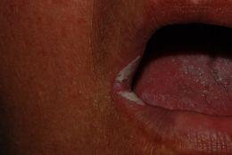 Candida albicans pseudomembranosa