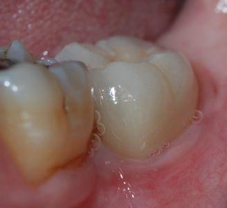 Perfetta armonia dei tessuti parodontali intorno alla ceramica del 37