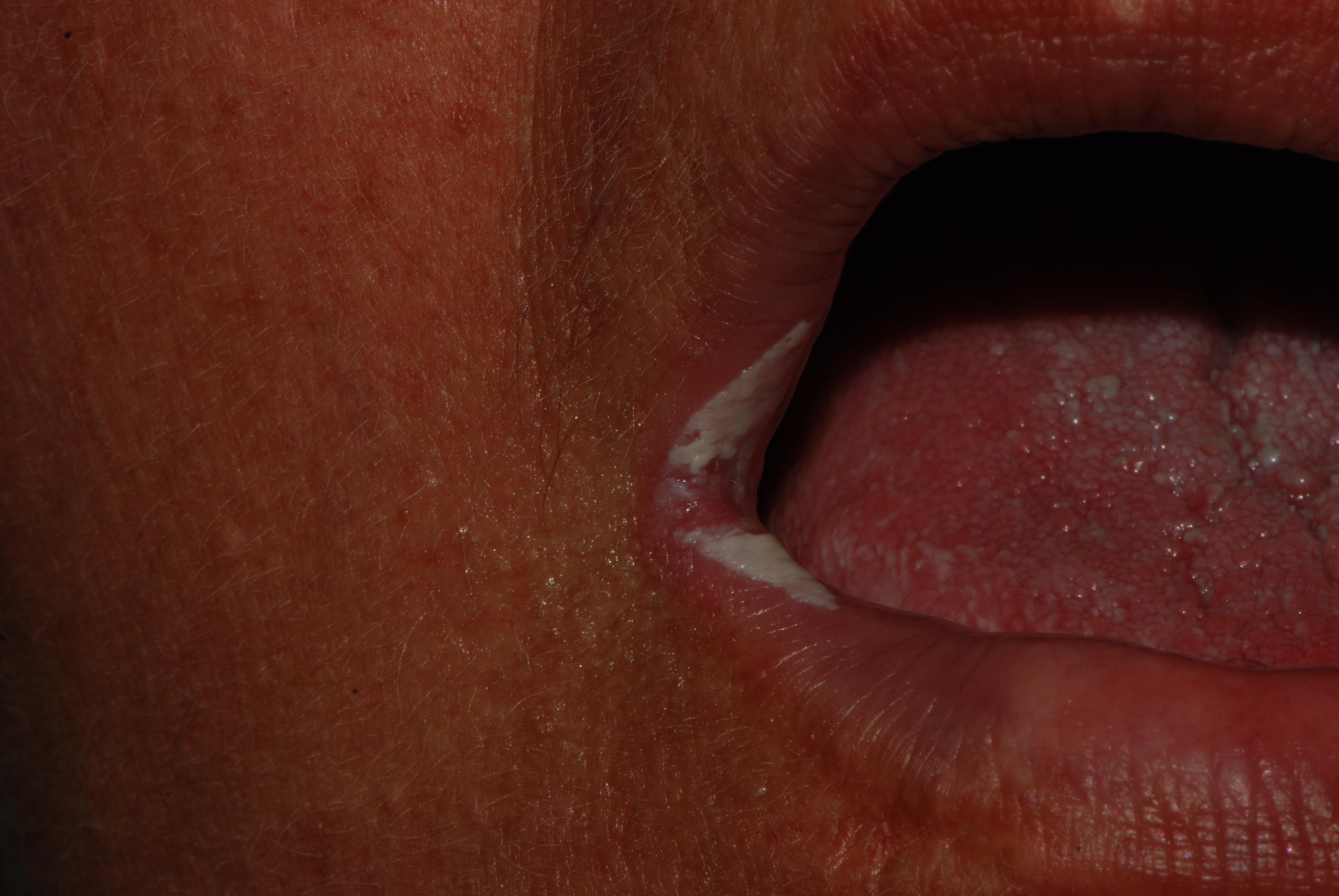 Infezione da Candida albicans