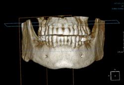 Sicurezza in implantologia e in odontoiatria generale