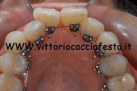 Attacchi ortodontici linguali 2D Forestadent
