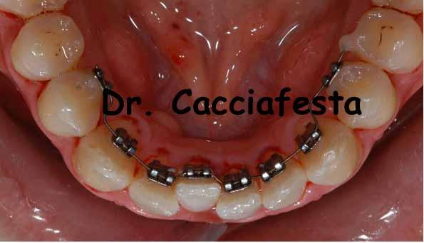 Correzione di lievi affollamenti o recidive all'arcata inferiore con ortodonzia linguale
