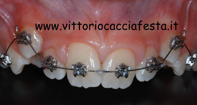 Allineamento ortodontico di canini ectopici con bracket autoleganti