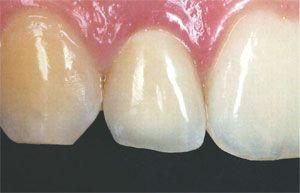 L?elemento artificiale ? quello al centro dei 3 denti