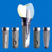 L'implantologia del terzo millennio