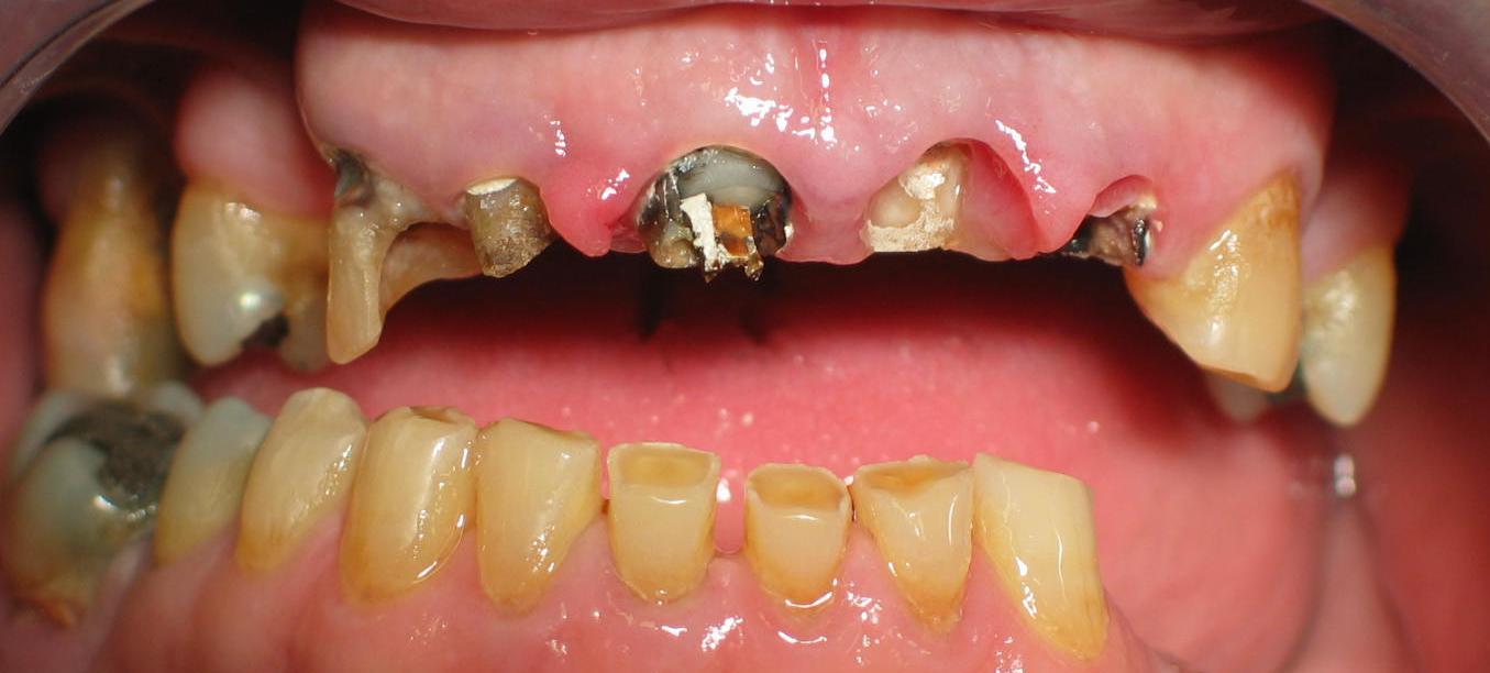 Recupero dell'elemento dentario fortemente compromesso 1^ parte
