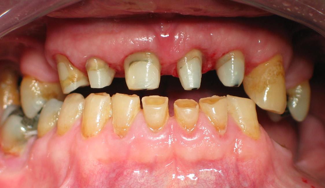 Recupero dell'elemento dentario fortemente compromesso 2^ parte