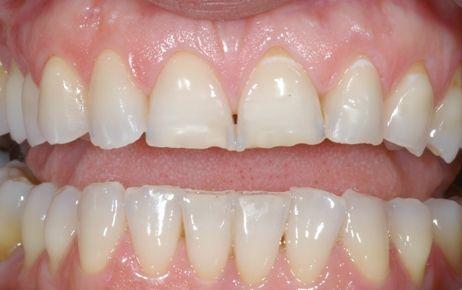 Usura dentale