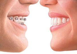 Ortodonzia Invisibile è Ortodonzia Estetica: il trattamento è nascosto alla vista