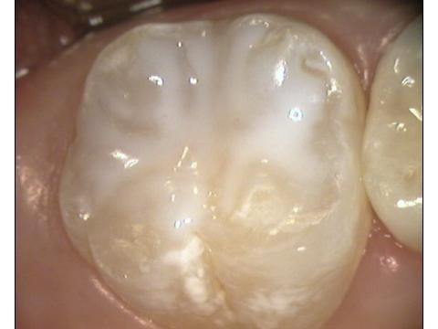 Solchi protetti dalle Sigillature dentali