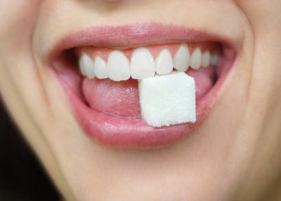 Faccette estetiche e Sbiancamento dentale