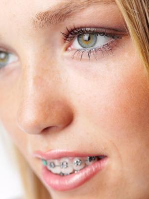 Ortodonzia: diagnosi, prevenzione e trattamento delle malocclusioni