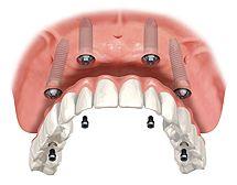 Dalla dentiera alla protesi fissa