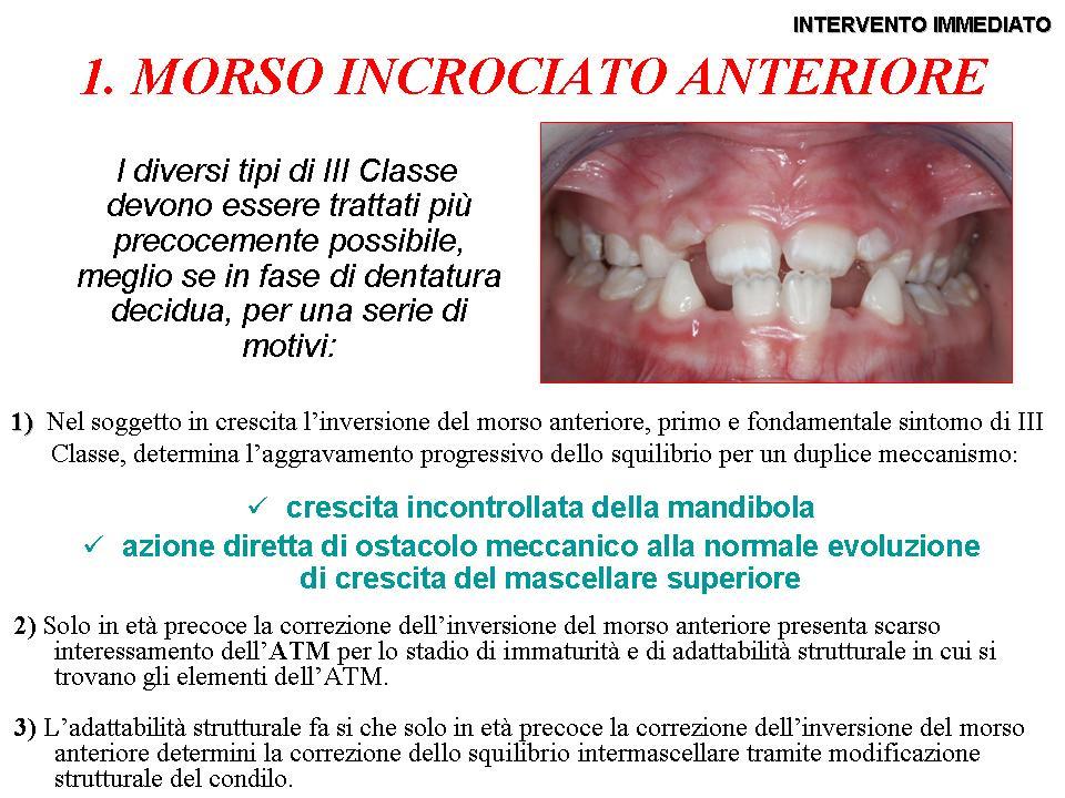 Trattamento precoce in dentizione mista