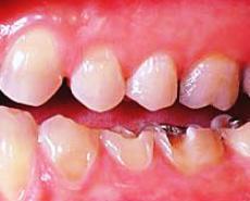 Le bevande gassate a base di soda e la salute dei denti