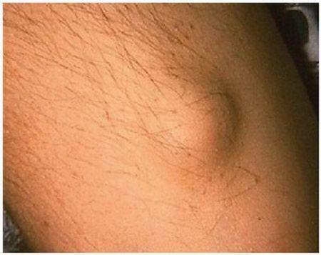 Nodulo di Meynet in pz affetto da malattia reumatica