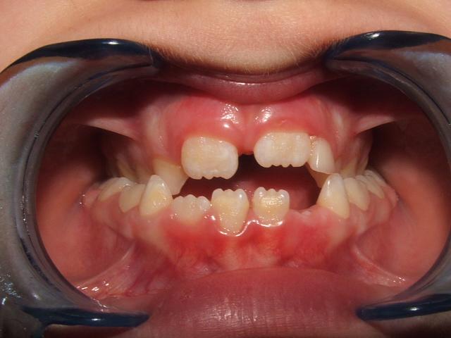 Il morso aperto anteriore: diversi approcci terapeutici