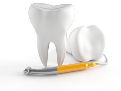 Il processo decisionale del dentista