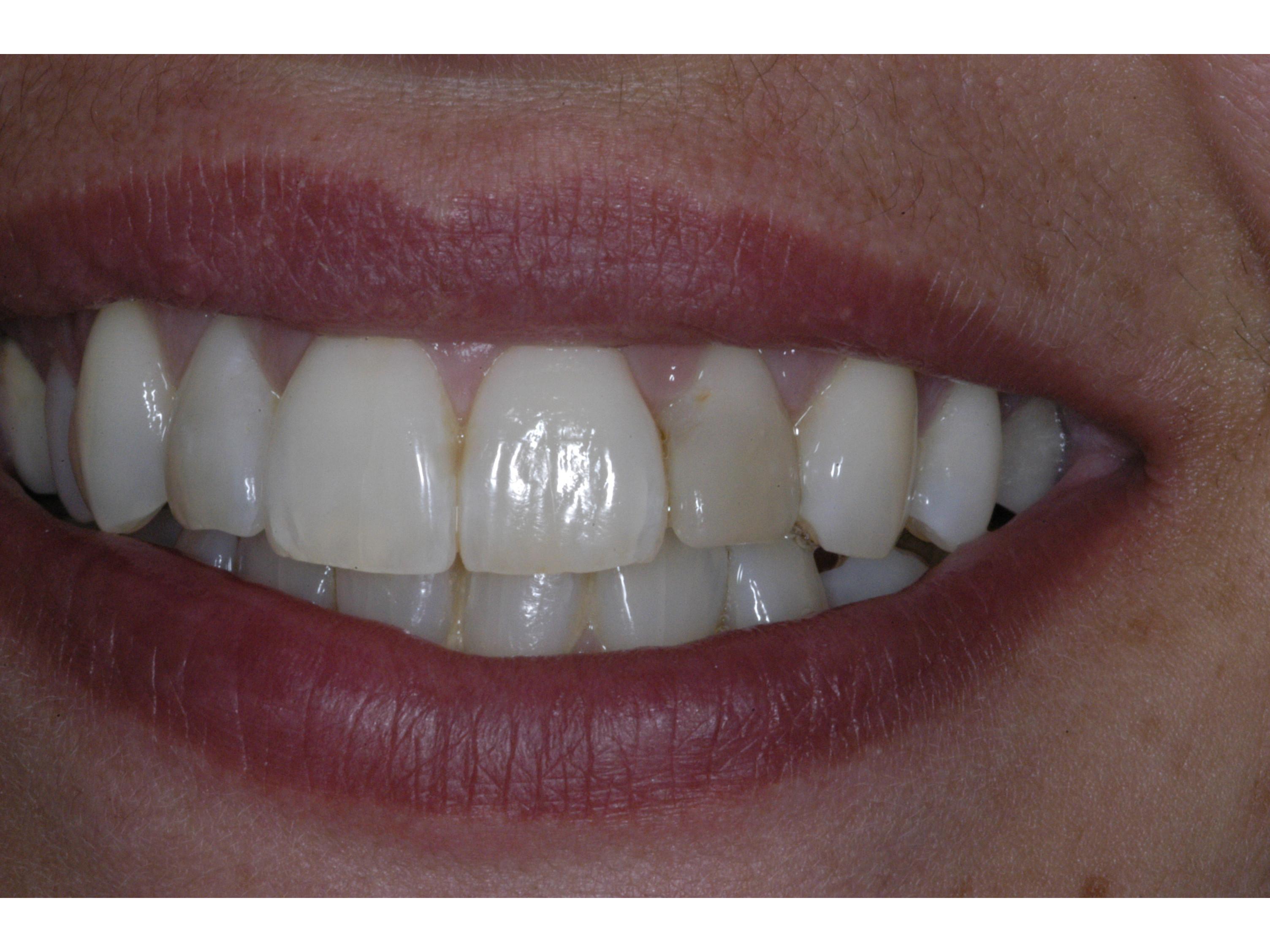 Estetica dentale per un sorriso perfetto e naturale