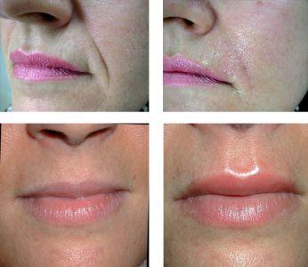 acido ialuronico nelle labbra e nei solchi naso genieni