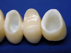 Protesi in odontoiatria