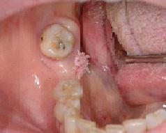 papilloma peduncolato lingua