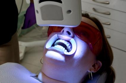 I trattamenti di sbiancamento dentale venduti in rete: cure o fregature?