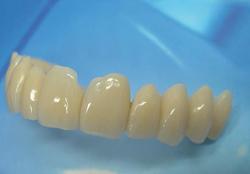 La protesi dentale provvisoria