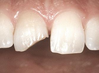 Le fratture dentali
