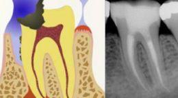 Un molare inferiore prima e dopo il trattamento endodontico