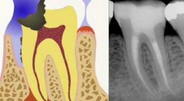 La 'Devitalizzazione di un dente': perchè si esegue, con quali metodiche e cosa comporta.