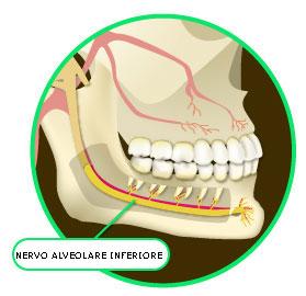 Le lesioni del Nervo Alveolare Inferiore (NAI) nella pratica Odontoiatrica