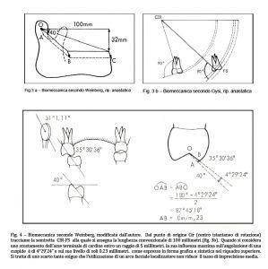 Molaggio selettivo: Figura 3 - 3b e Figura 4