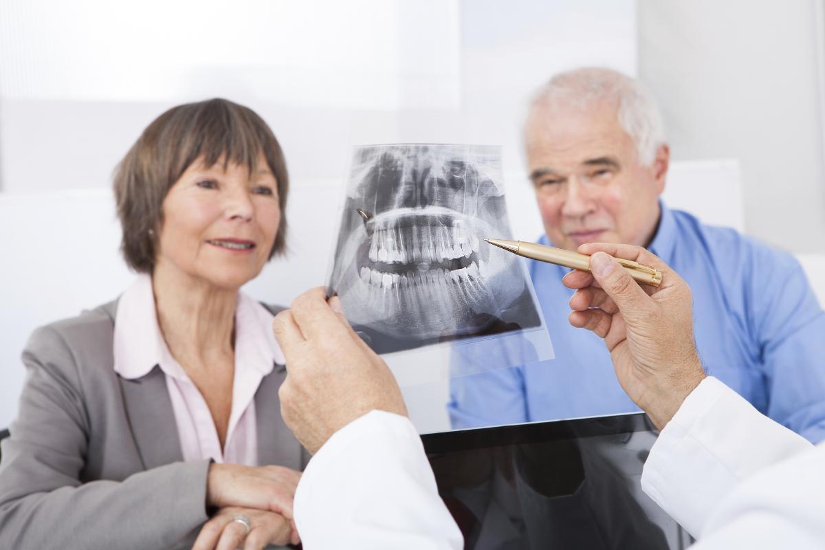 Cosa sapere prima di poter mettere gli impianti dentali?