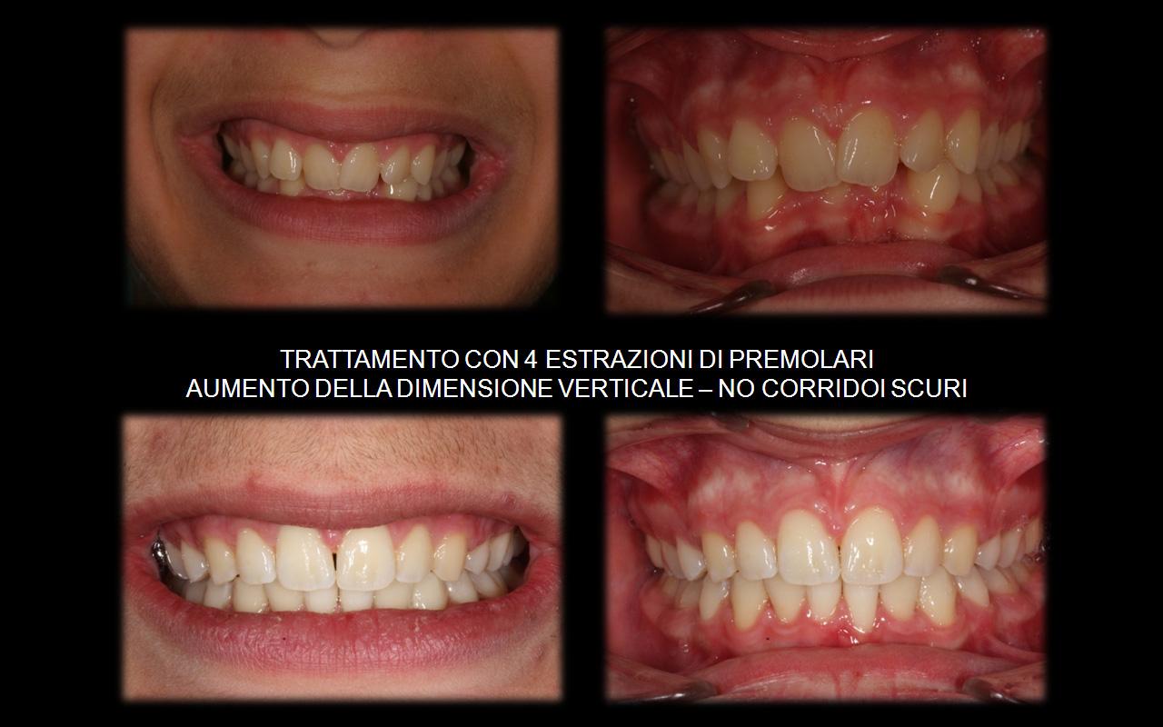 Caso con estrazioni 2 premolari superiori (4-ti) e 2 inferiori (5-ti)