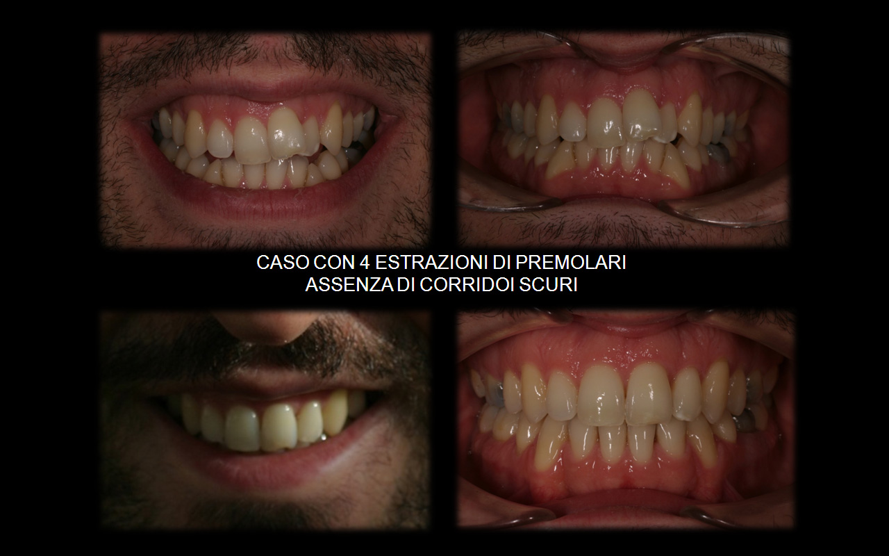 Caso con estrazione di 2 premolari superiori (5-ti) e 2 inferiori (4-ti)