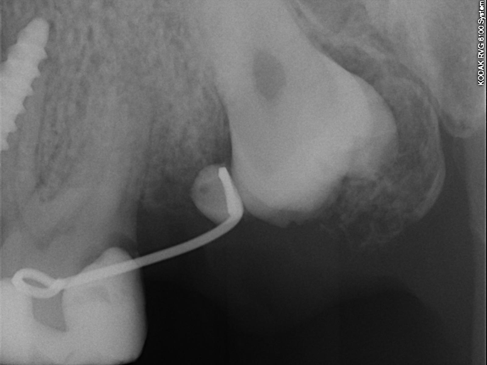 Radiografia dente del giudizio superiore.
