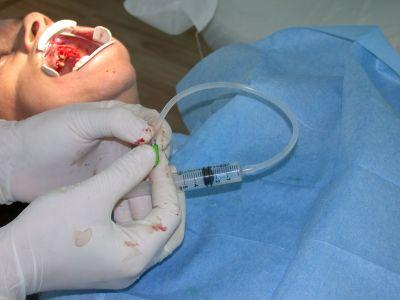 Visione intraoperatoria di mini rialzo di seno.