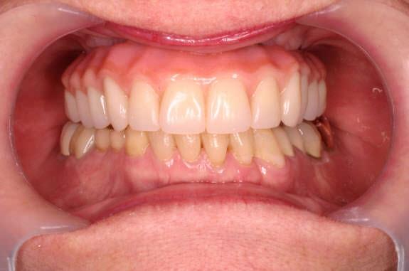 Implantologia a carico immediato con tecnica 'All-on-4'