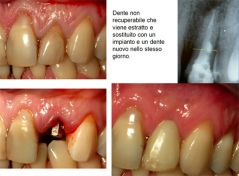 Immediate placement and temporization of implants: 3- to 5-year retrospective results.