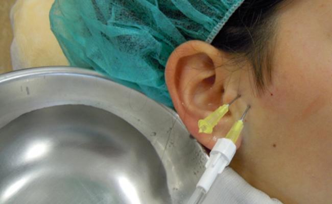 L'artrocentesi con Acido Ialuronico nel trattamento dei processi infiammatori e degenerativi dell'articolazione temporomandibolare.