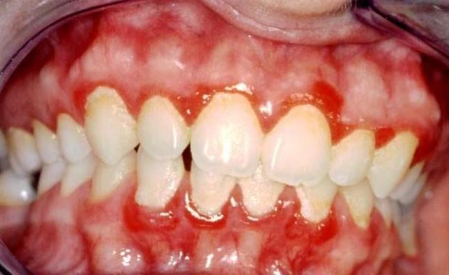 La cattiva igiene orale è rischiosa per il cuore ?