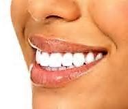 Hollywood Smile - Smile Designer - Smile Makeover - Clincheck: Cosa sta Cambiando?