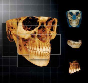 Utilità della Tomografia Computerizzata (TC) Cone Beam in odontoiatria